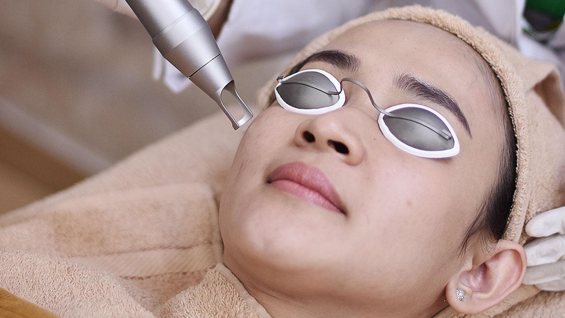 treatments-Laser-NDYag