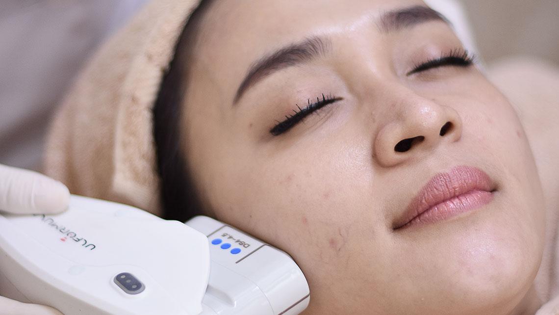 treatments-V-Shape-HiFu